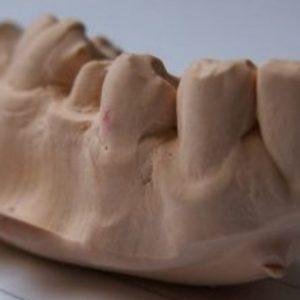 Digital vs Traditional |  Best Dental Impressions