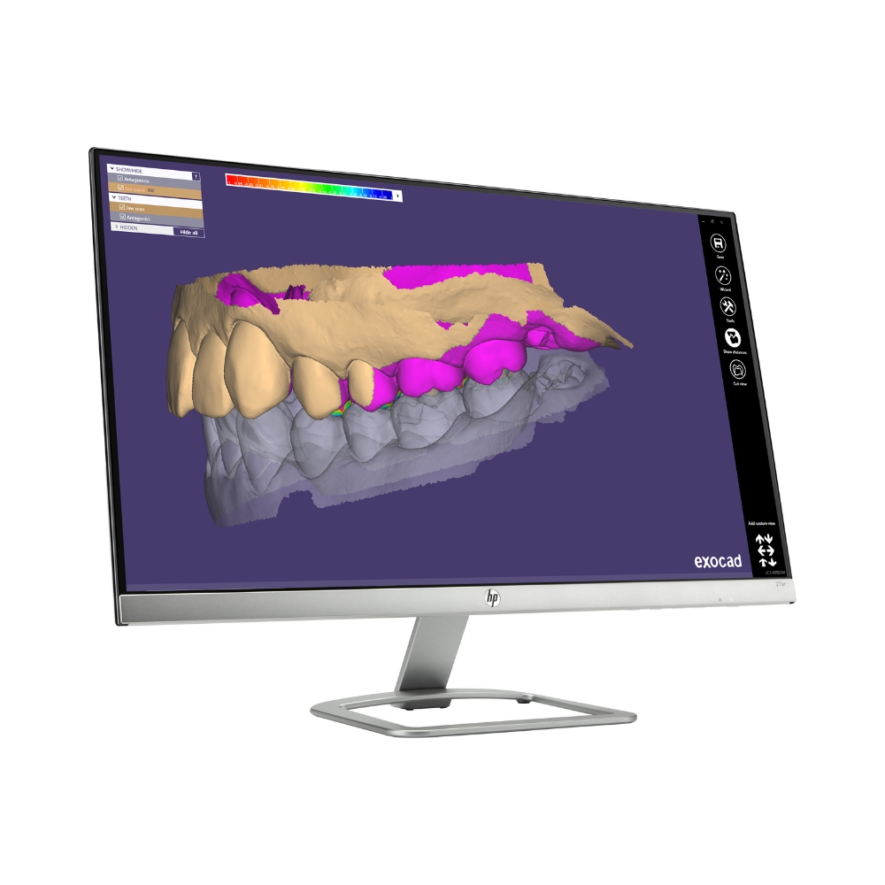 Quickscan DB By Exocad - Video Dental Concepts